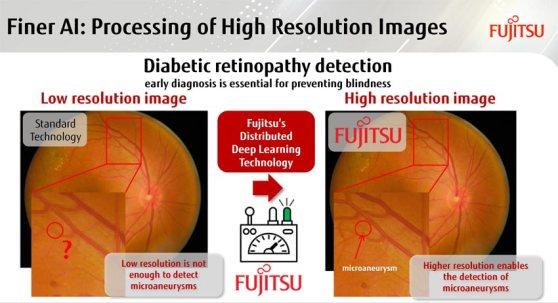 fujitsu_retinopatia-diabetica.jpg